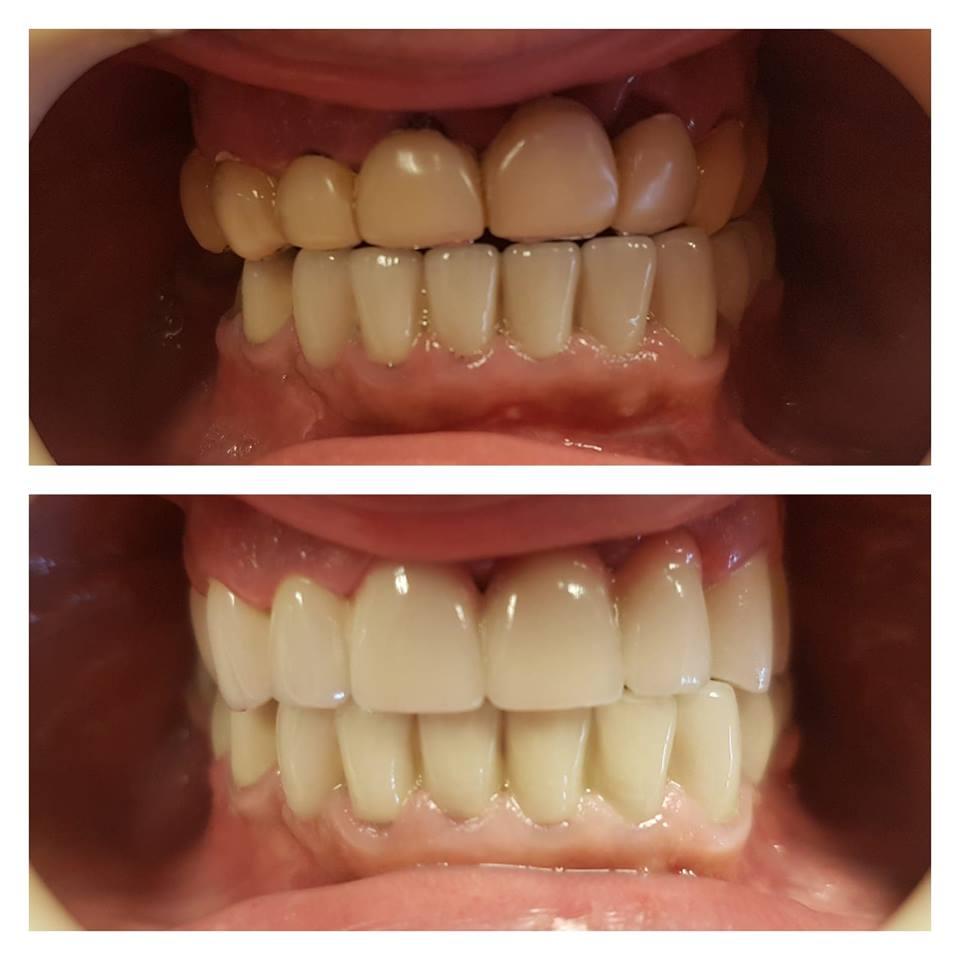 Servicii Complete de Stomatologie - Diana Smile Clinică Stomatologică