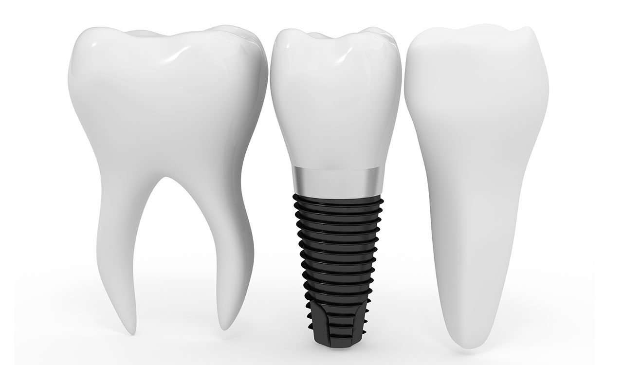 Tratamentul-prin-Implant-Dentar