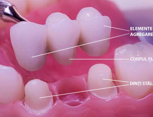 Ce trebuie să știi despre Puntea Dentară