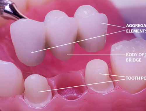What you need to know about Dental Bridge