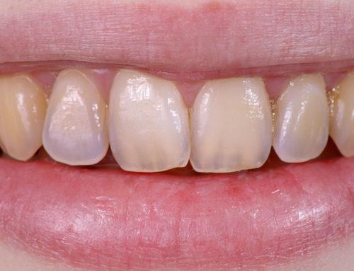 Eroziunea dentară. Cauze. Simptome. Prevenție. Tratament
