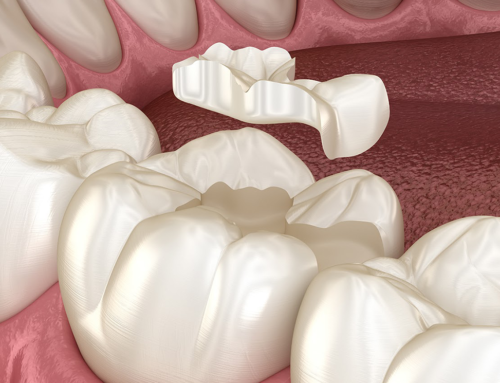 Tooth restoration with dental inlays