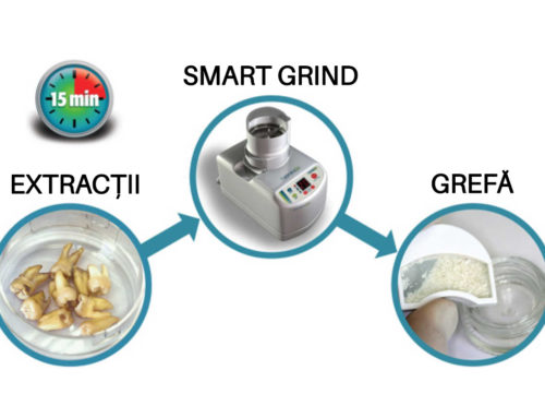 Smart grinder for grafts made from the patient's own teeth