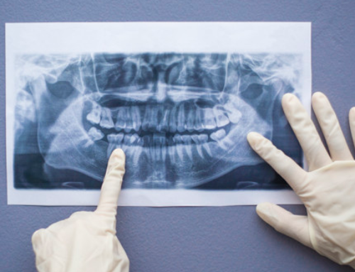 Types of dental X-rays used in dentistry