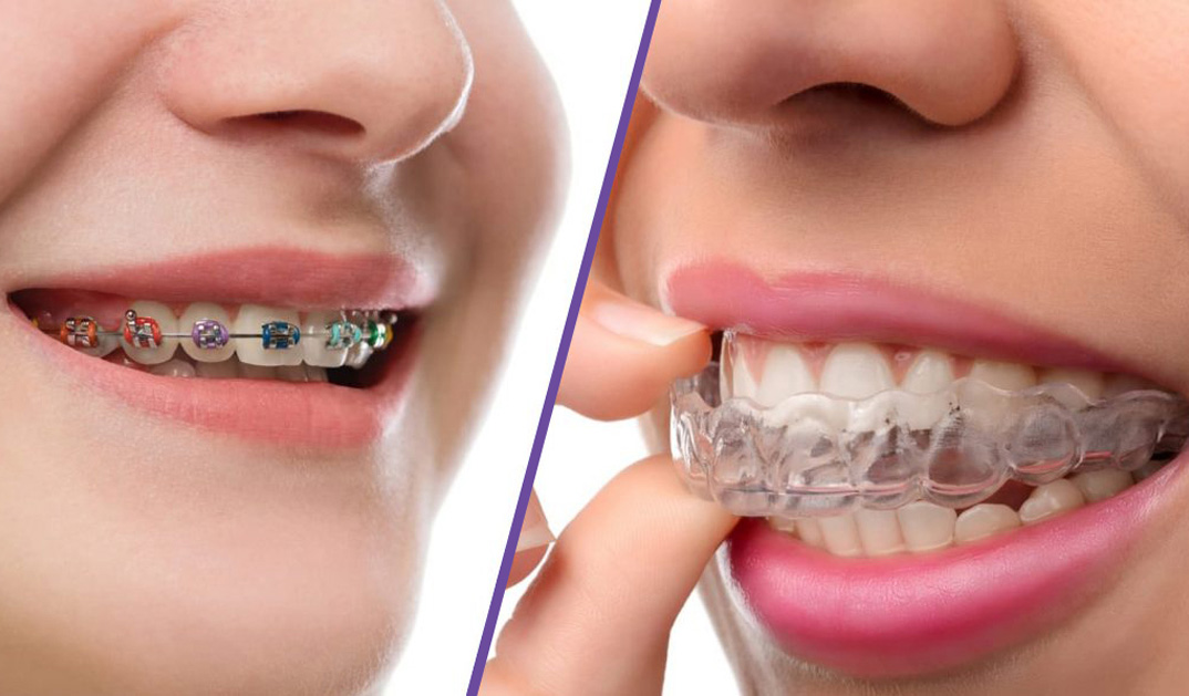 Tratament cu aparat dentar